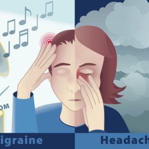 Migraines and Medicinal Cannabis